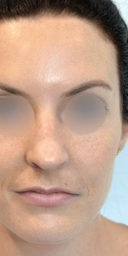 Before liquid nose job front