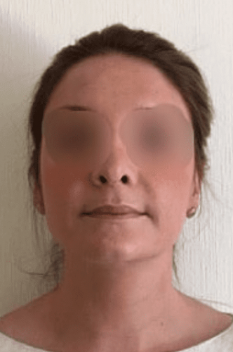 Nose After Reduction