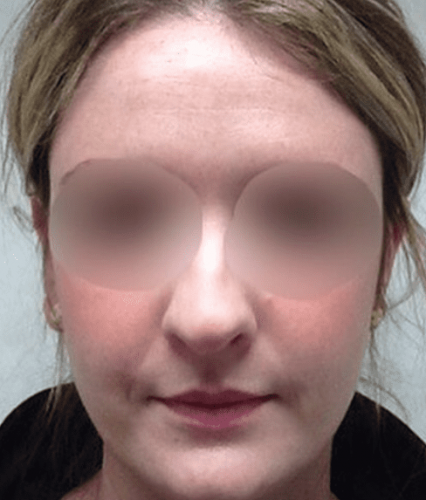 Nose Before Reduction
