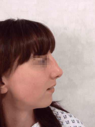 uppal-nose-44-1