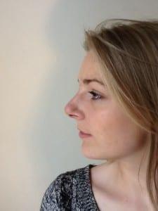 uppal-nose-surgery-1-225x300