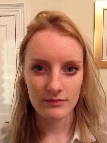 uppal-nose-surgery-15