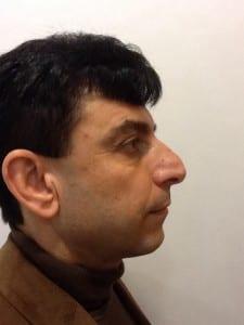 uppal-nose-surgery-6-225x300