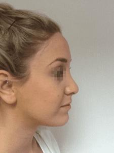uppal-rhinoplasty-35-225x300