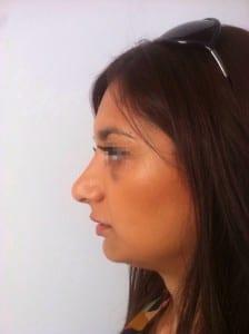 uppal-rhinoplasty13-224x300